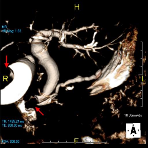 Ampullary Adenocarcinoma Jaundice