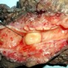 Nodular mass in the common bile duct lumen