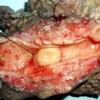 Nodular mass in the common bile duct lumen