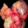 Gross specimen showing a large lobulated tumor in relation to the body and tail of the pancreas