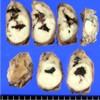 Middle pancreatectomy specimen