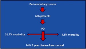 Morbidity, mortality, and survival of patients with peri-ampullary tumors who underwent pancreaticoduodenectomy