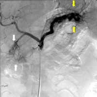 Two large vascular arteriovenous malformations involving both the pancreatic head and tail
