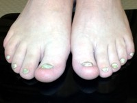 Thick yellow toe nails consistent with ectodermal dysplasia