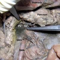 Downward course of the splenic vein