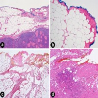 Tissues at the resection margin