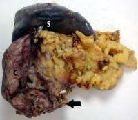 Distal pancreatectomy/splenectomy specimen