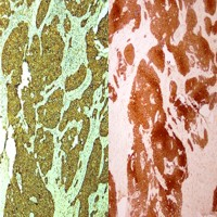 Tumor cells showing cytokeratin and neurone specific enolase positivity