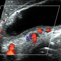 Dilated venous channels in the wall of gallbladder at sonogram