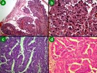 Pathology of intraductal oncocytic papillary neoplasm