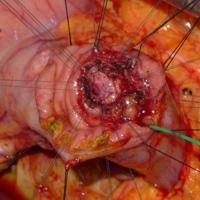 Pancreatic duct reconstruction