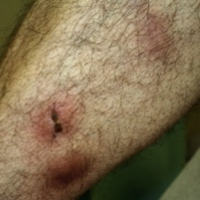 Initial dermatologic manifestation on lower extremities