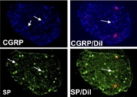 Anti-NGF treatment results in downregulation of substance P and CGRP
