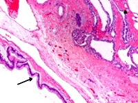 Histological slide demonstrating synchronous IPMN and serous cystadenoma