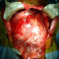 Operative photograph showing the tumor