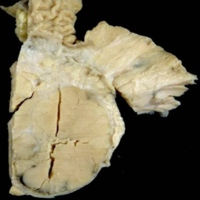 A solid mass in the head and body of the pancreas measuring 6.5x6.0 cm with a variegated cut surface