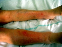 Multiple erythematous subcutaneous nodules on the lower legs