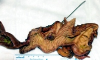 Pancreaticoduodenectomy specimen