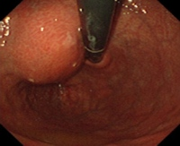 Submucosal tumor
