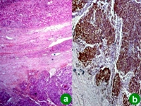 Metastatic tumor deposits in the liver parenchyma with strong CD117 expression