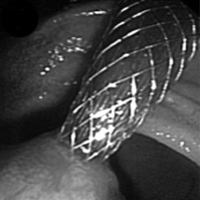 Endoscopic view of transduodenal self-expandable metallic stent