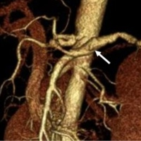 3D-CT angiography showing a leakage of contrast medium from a fusiform aneurysm of the middle-distal splenic artery