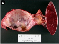 Gross surgical resection specimen
