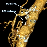 Changes in functioning arterial collaterals after celiac trunk stenting
