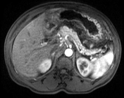 MRI of the abdomen with contrast: prominent inflammatory changes surrounding the pancreas, with no necrosis or pseudocyst formation