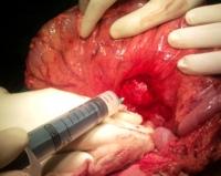 Cyst decompression by aspiration