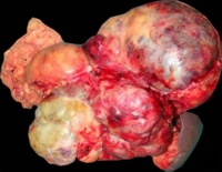 Large lobulated mass in relation to the body and tail of the pancreas