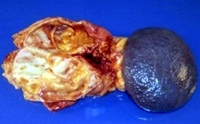 Gross appearance of the cystic tumor in the pancreas tail