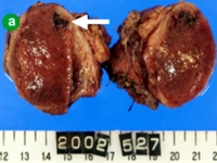 Well-circumscribed solid mass with hemorrhagic degeneration