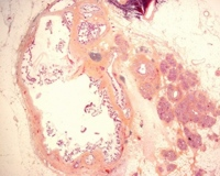 Pancreatic ducts lined by tall, columnar, mucin-containing epithelium with papillary projections
