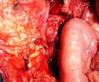 Proximal pancreas and jejunal Roux-en-Y pancreaticojejunostomy