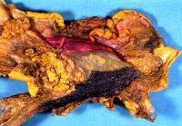 Pancreaticoduodenectomy specimen