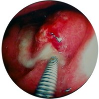 Intragastric fistula with pus exudate.